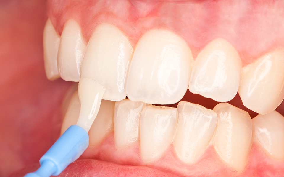 The Magical Science of Fluoride Varnish